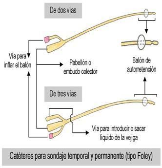 partes de la sonda vesical