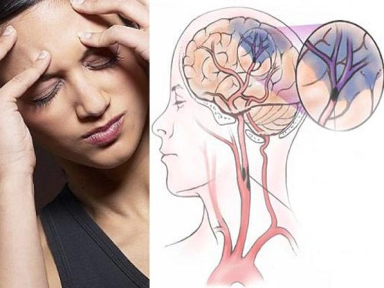 Diagnóstico aneurisma