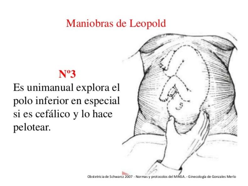 3ra maniobra de Leopold