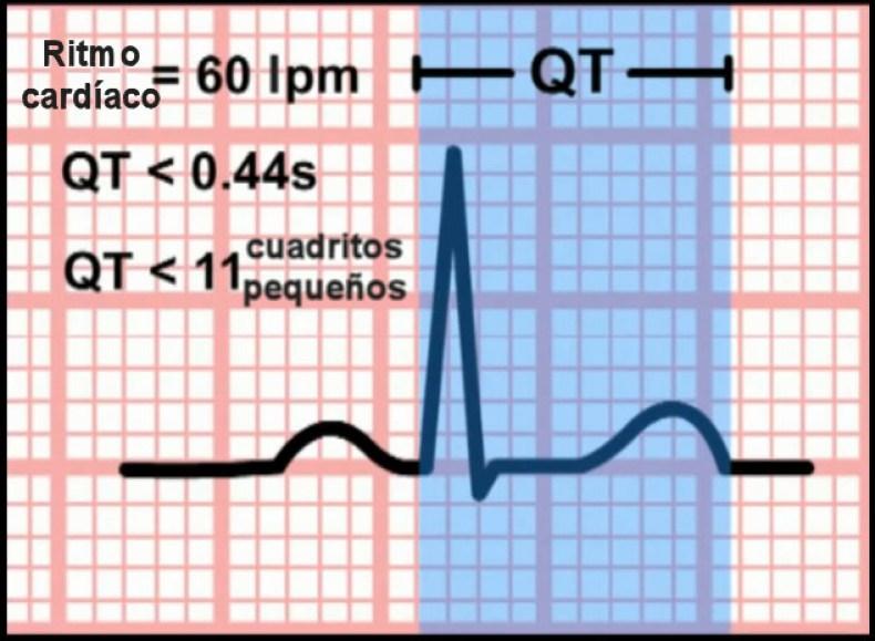 Intervalo QT ECG