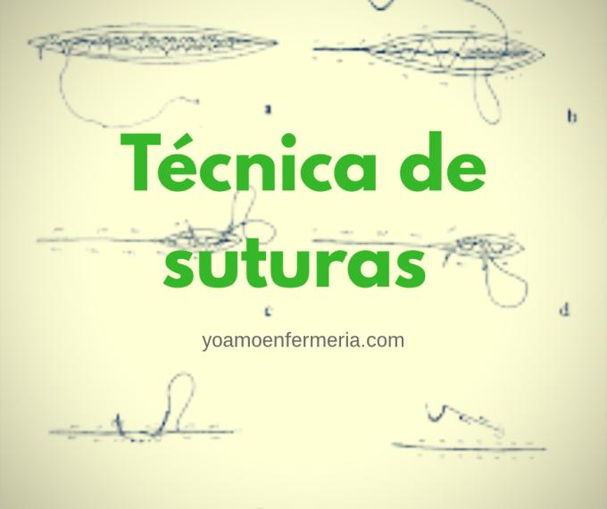 La técnica de sutura se refiera a la actividad de coser una herida o una incisión o cerrarla mediante puntos de sutura utilizando una técnica especifica.