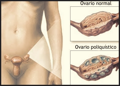 Síndrome de Ovario Poliquístico - SOP