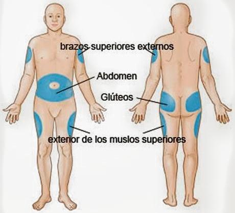 Sitios frecuentes de aplicación de inyecciones subcutanea.