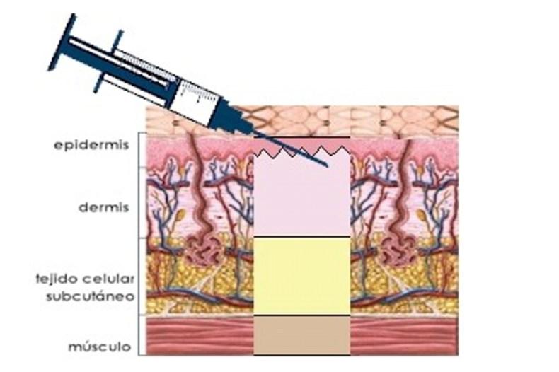 Inyección intradérmica.