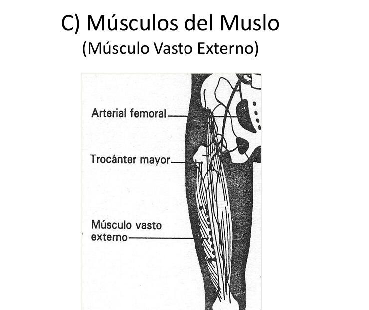 Intramuscular muslo vasto externo