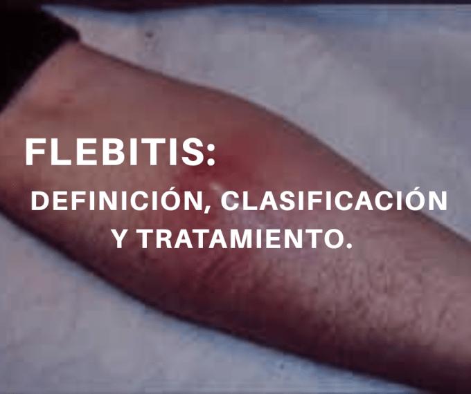 La flebitis queda defina como Induración o eritema con calor y dolor en el punto de entrada y/o en el trayecto del catéter