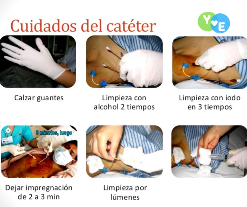 Cuidados y curación del catéter venoso central