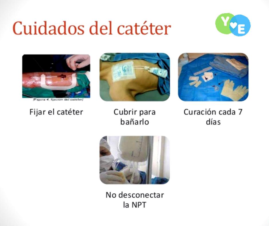 Cuidados y curación del catéter venoso central 2l