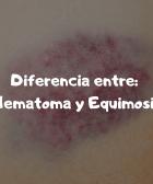DIFERENCIA ENTRE HEMATOMA Y EQUIMOSIS