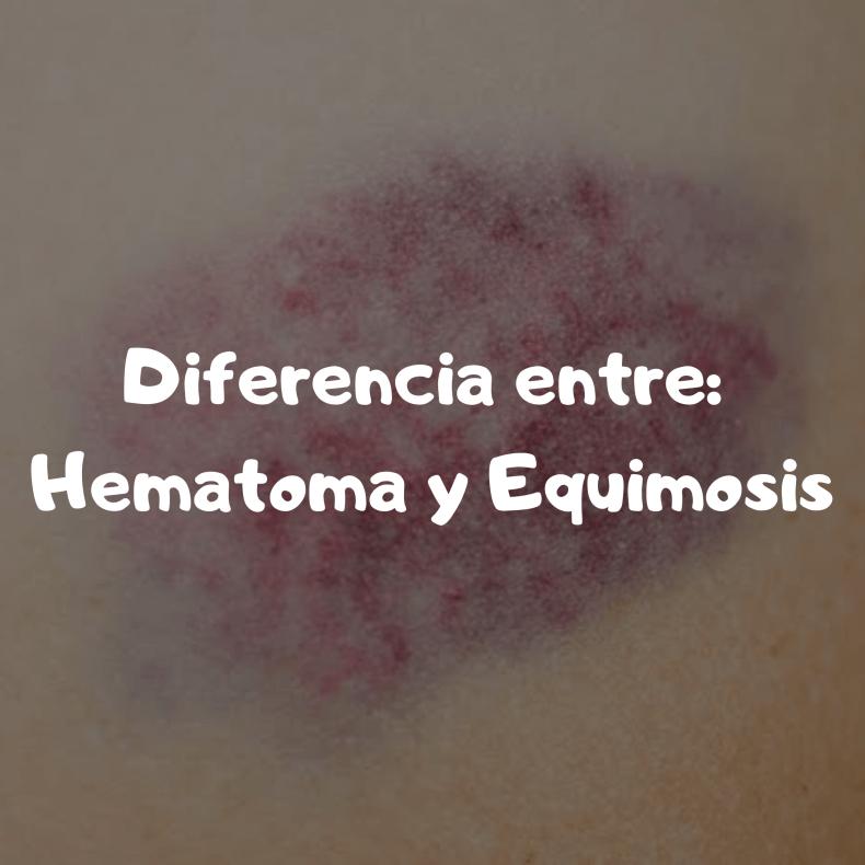 Hematoma y equimosis diferencia