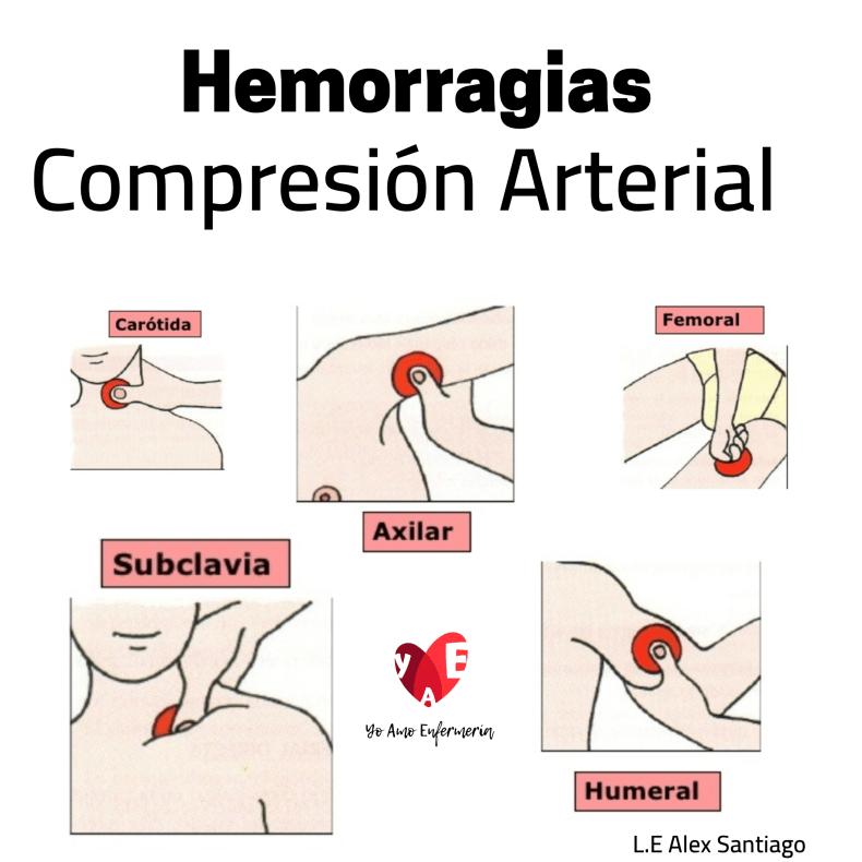 hemorragias Compresión arterial