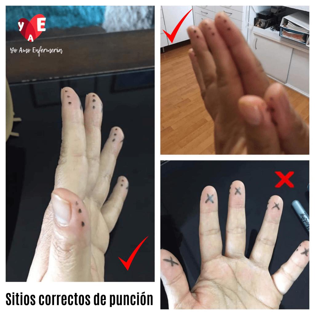 SITIOS CORRECTOS DE PUNCIÓN PARA GLUCOSA CAPILAR
