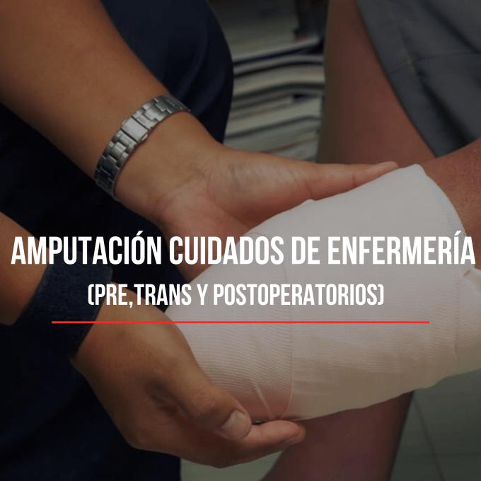 La amputación es la eliminación por lo general quirúrgica, total o parcial de una extremidad con el fin de aliviar los síntomas, mejorar su función sin dolor