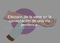 Elección de la Vena en la Canalización de una Vía Periférica