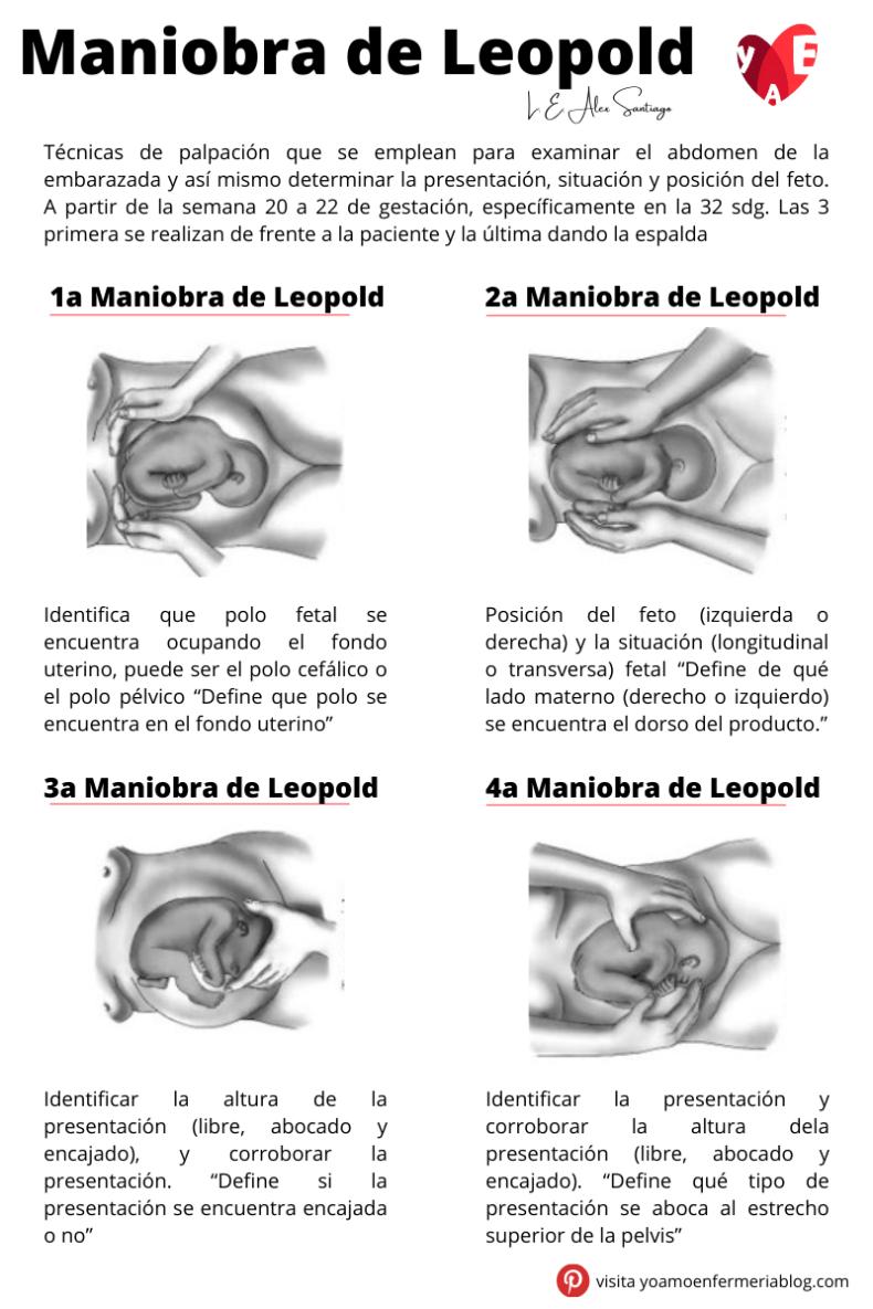 Maniobras De Leopold