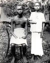 Amputados en el Congo