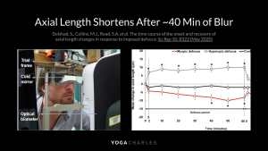 Axial Length Shortens
