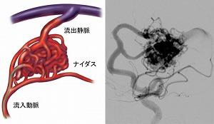 脳動静脈奇形