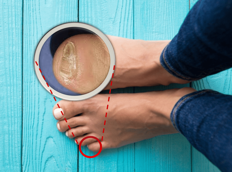 Why We Have Accessory Nail of Fifth Toe? - You Ask We Answer