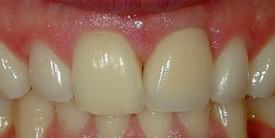 Dental Implants - AFTER