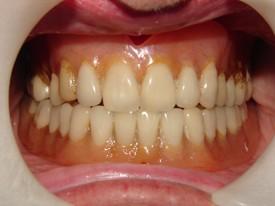Dentures - BEFORE