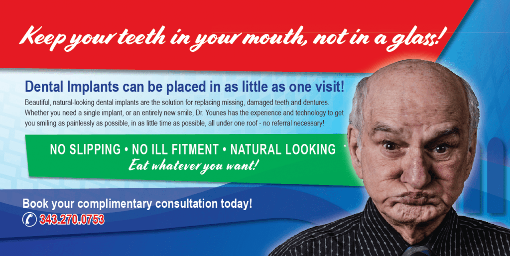 dental implant trenton belleville