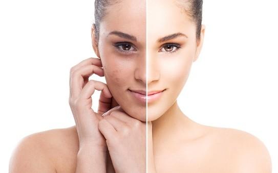 natural ways to remove sun tan
