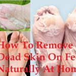 How To Remove Dead Skin On Feet Naturally At Home
