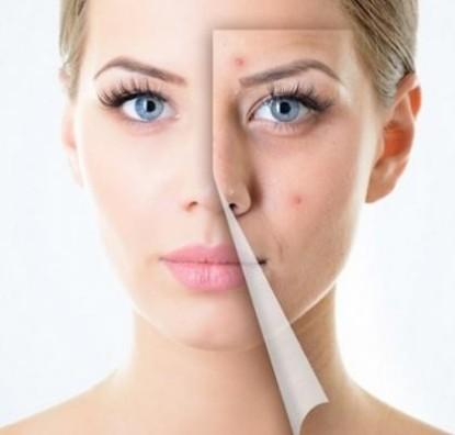 Acne And Pimple Removing Cream