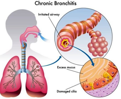 Eucalyptus Oil For Bronchitis