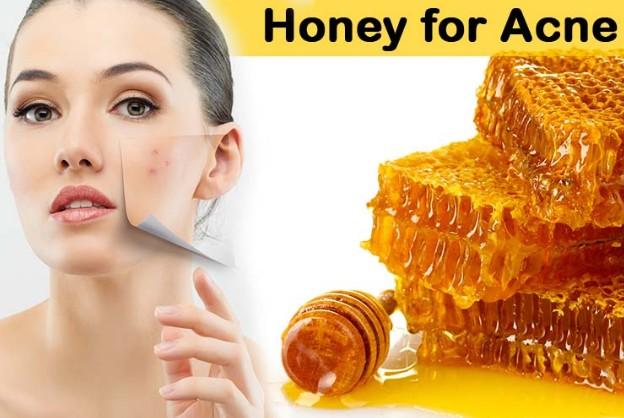 Honey Treats Acne & Acne Scars
