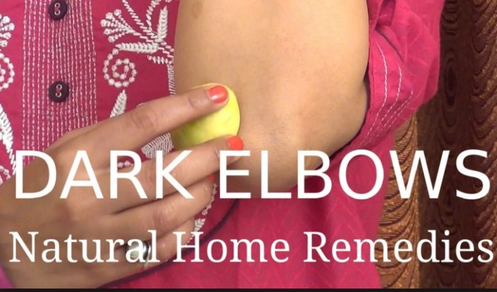 How To Get Rid Of Dark Elbow At Home