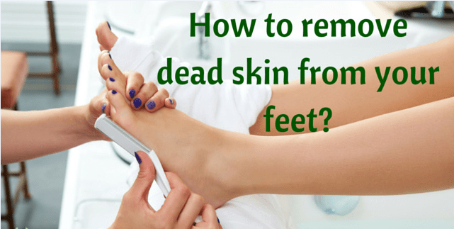 how to remove dead skin on toes