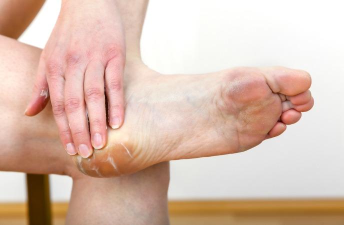 sesma oil for heel scars