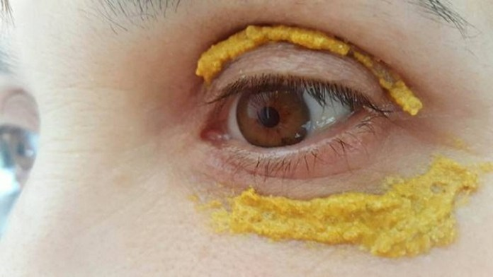 10 Amazing Health Benefits Of Turmeric For Skin And How To ...