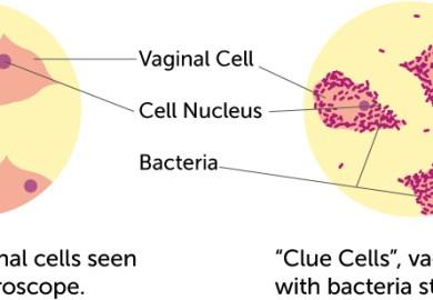 Clue Cells Vs Epithelial Cells