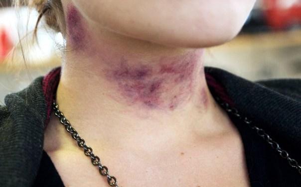 Strangulation – Asphyxiaphilia