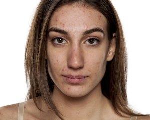 Pimple prevention