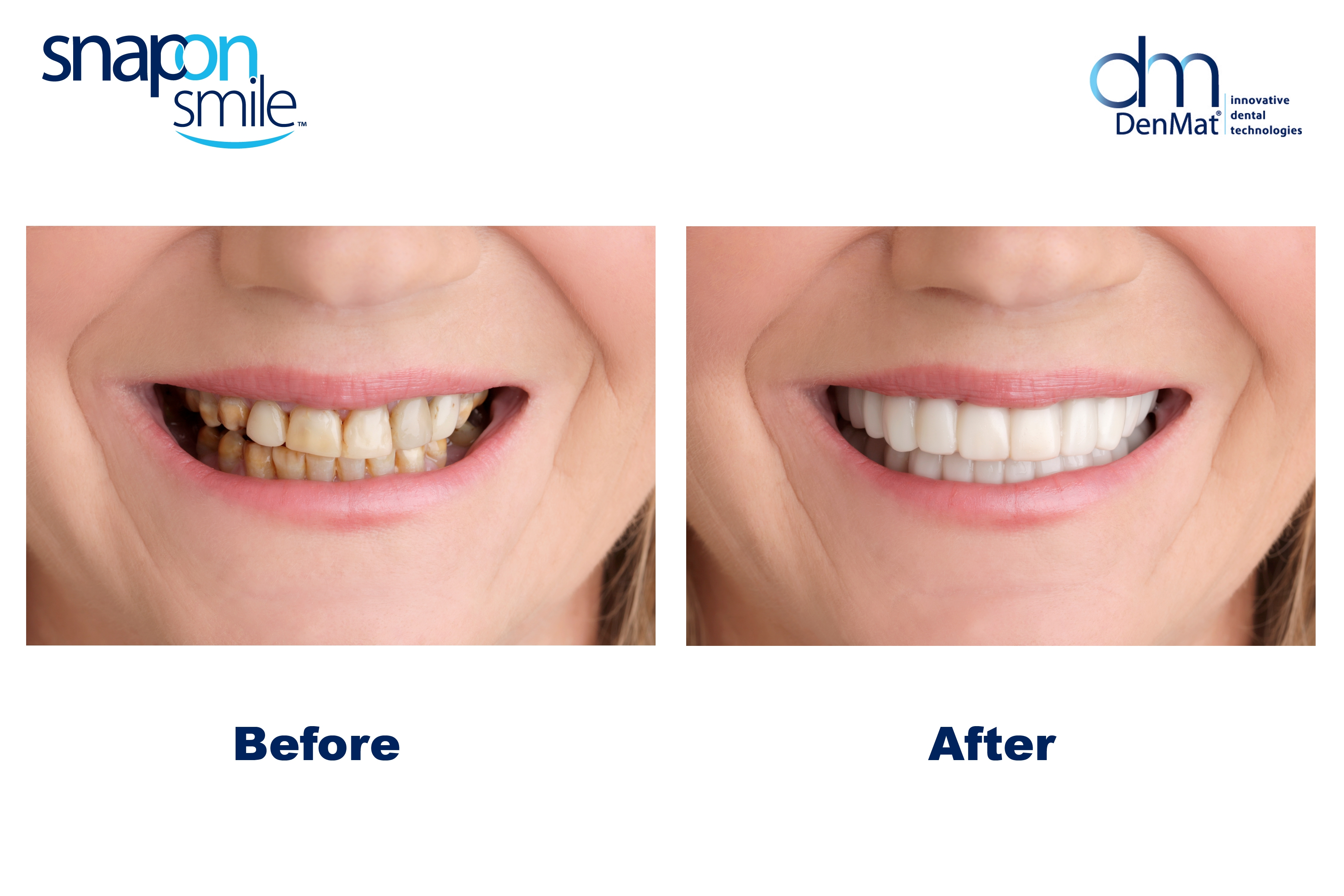 Single Visit Dental Treatment Options To Spruce Up Your