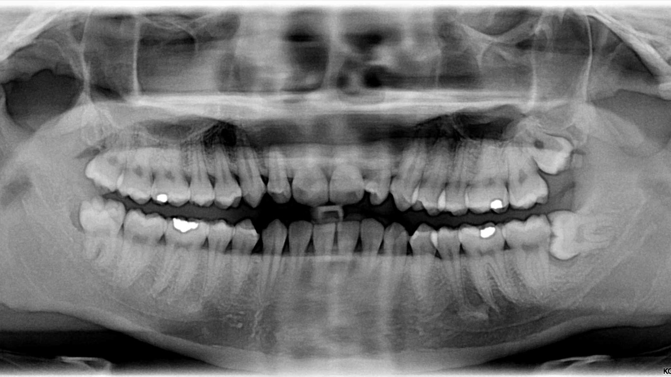 Impacted Wisdom Teeth Can Crowd Your Smile  Your Dental