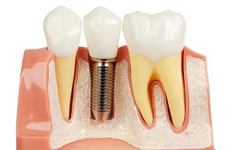 Mengganti Gigi yang Hilang- Global Estetik Dental Care