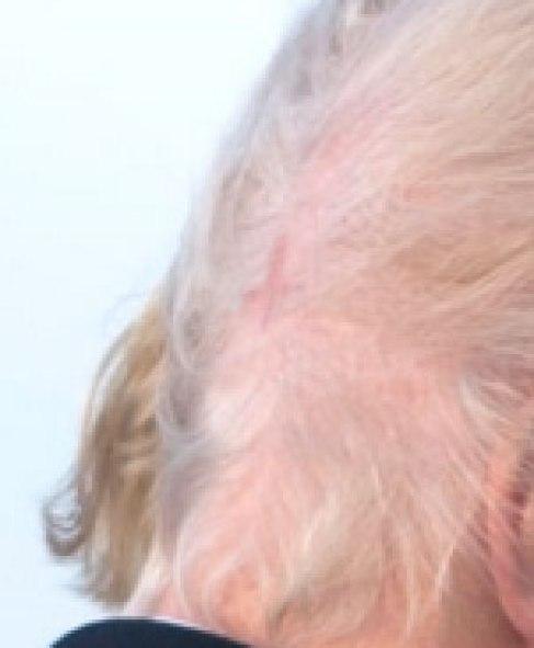 Trump-Antichrist-cross-scar-bald