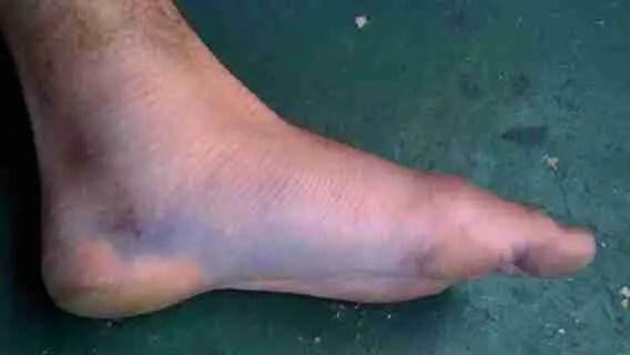 Top Of Foot Is Broken