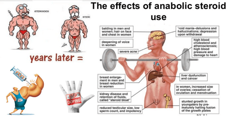 Anabolic steroids side effect with picture
