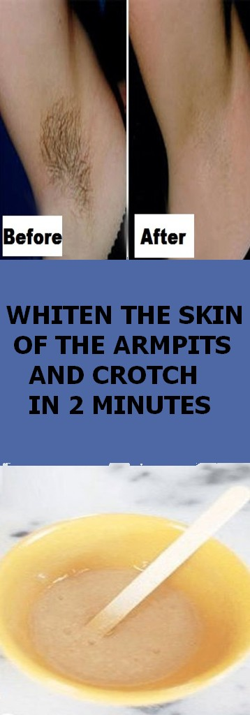 WHITEN THE SKIN OF THE ARMPITS AND CROTCH IN 2 MINUTES