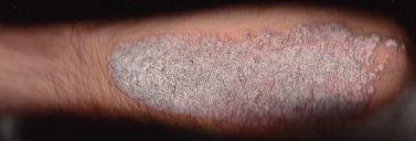 Skin Disorder Plaque Psoriasis