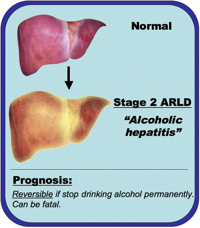 how-alcohol-damages-your-liver-05
