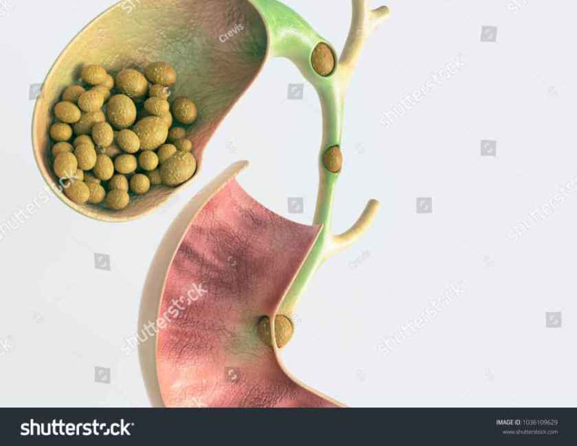 living-without-a-gallbladder-01
