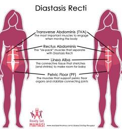 pregnancy pilates diastasis recti diagram [ 1833 x 1803 Pixel ]