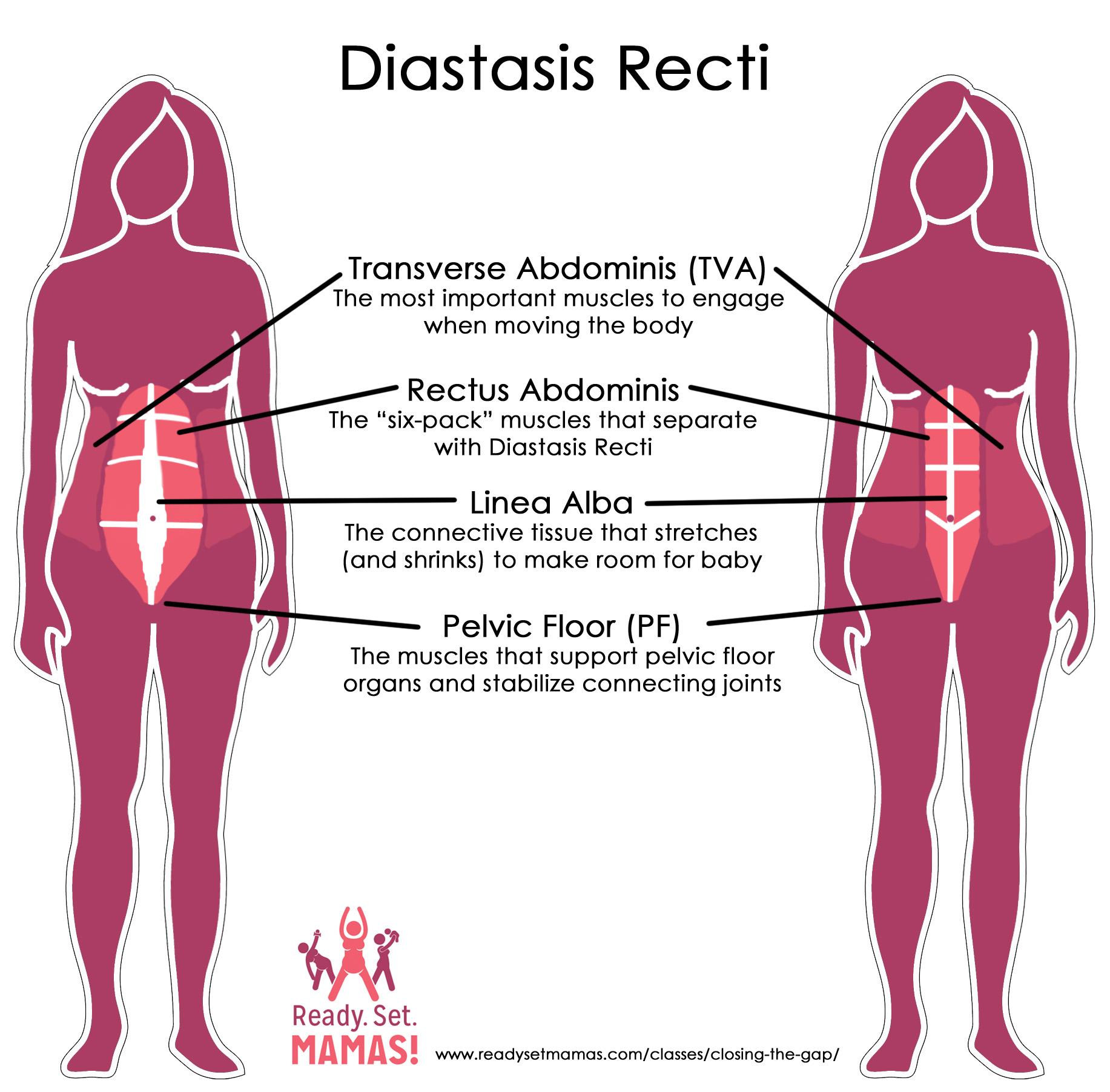 hight resolution of pregnancy pilates diastasis recti diagram